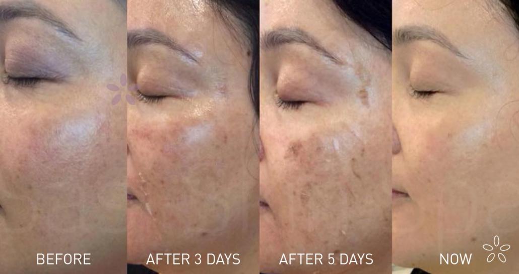 Sasi Skin Spa SASI4206-EDM-and-Web-graphic-800x423-skin-peel-1-1030x545 Peel away the layers