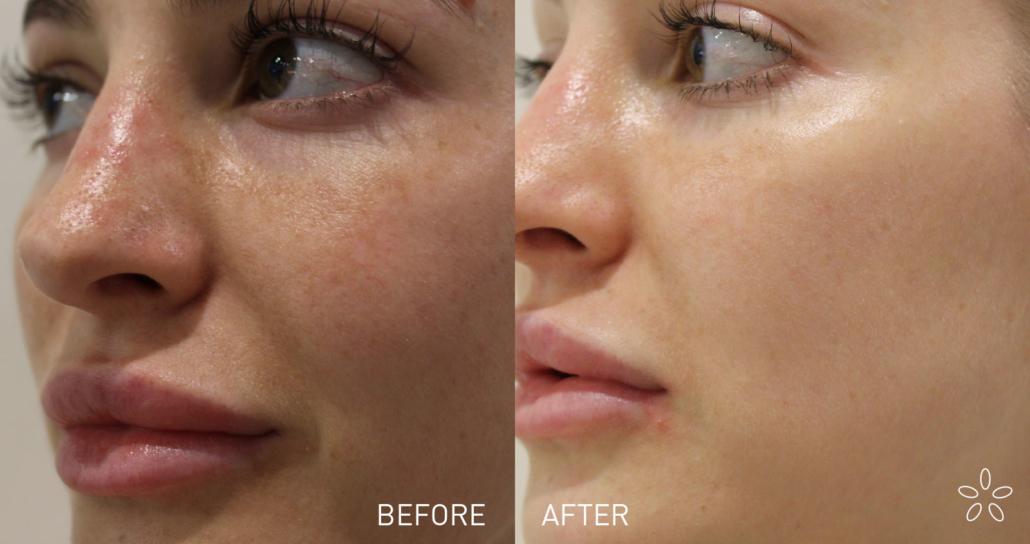 Sasi Skin Spa SASI4206-EDM-and-Web-graphic-800x423-skin-peel-2-1030x544 Peel away the layers